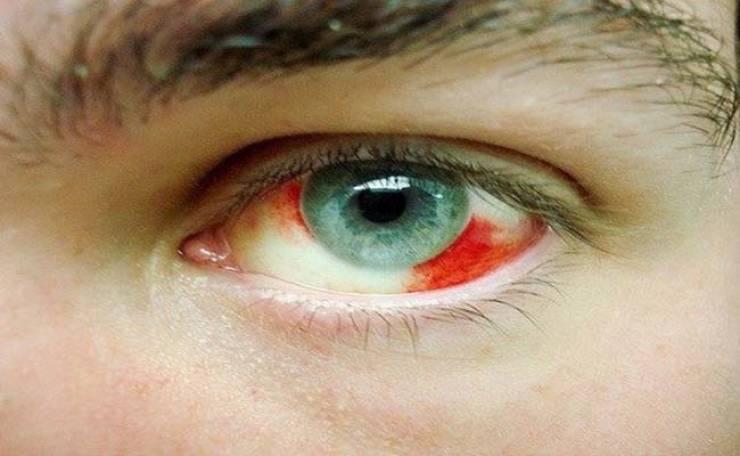 أسباب نزيف العين وطرق علاجها المرسال