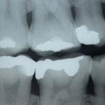 نقص الكالسيوم وتأثيره على الاسنان
