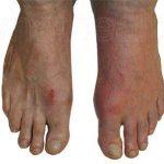 علاج انسداد شرايين القدم