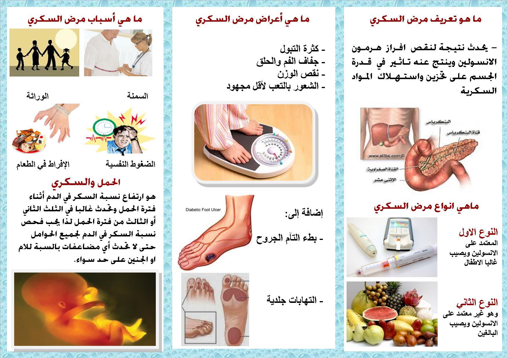 499c4d03b مرض السكري هو مرض مزمن من الصعب التخلص منه ويحدث نتيجة حدوث خلل في مستوى  نسبة السكر في الدم حيث أن حدوث أي خلل في البنكرياس وهو العضو المسئول ...