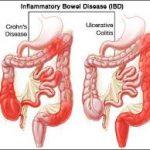 التهاب القولون التقرحي لدى الأطفال