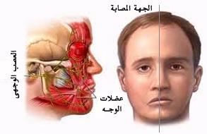 نتيجة بحث الصور عن التهاب العصب السادس