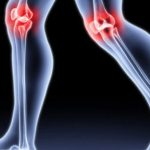 أعراض التهاب المفاصل الارتكاسي و أسباب الإصابة به