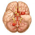 كيفية حماية الأوعية الدموية الدماغية من التمزق