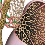 التهاب الخصية بعد عملية الدوالي وكيفية العلاج