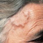 أعراض الإصابة بالتهاب الشريان ذو الخلايا العملاقة