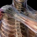 اعراض التهاب عصب الرقبة وكيفية علاجه