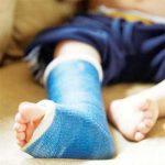 الفرق بين الجبيرة والجبس في علاج امراض العظام