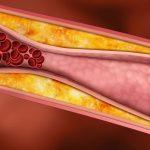 اعراض تصلب الشرايين في الشريان الاروطي البطني