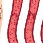 علاقة خثار الوريد العميق بزيادة خطر السرطان