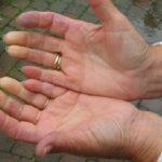 الفرق بين الإصابة بداء رينو و فرط تعرق اليدين