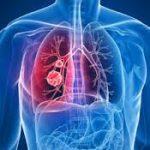 الأعراض المبكرة لسرطان الرئة