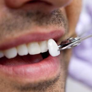 العلاج المناسب لكسور الاسنان الامامية المرسال