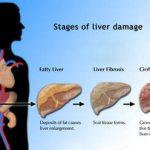 تحسين وظائف الكبد بالحجامة