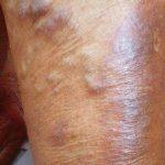 العلاقة بين الإصابة بسرطان الثدي و الليمفوما