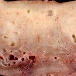 أسباب النزيف الرحمي بعد سن اليأس