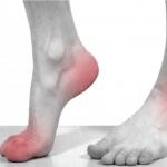 الفرق بين التهاب المفاصل الروماتويدي والنقرس