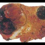 أنواع سرطانات الكبد الأولية و أسباب الإصابة بها