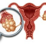 حقائق ومعلومات عن سرطان المبيض