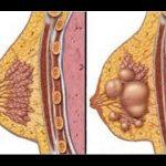 طرق علاج احتقان الثدي أثناء الرضاعة