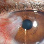 أسباب تراكم البروتين في العين وطرق العلاج