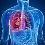 الفرق بين الالتهاب الرئوي و الشعبية و سرطان الرئة