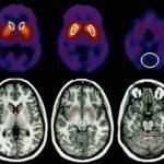 اضطرابات المناعة الذاتية التي تهاجم الجهاز العصبي