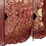 أطعمة تساعد على تجديد أنسجة الكبد