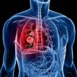 أسباب ظهور خراج الرئة وعلاجه