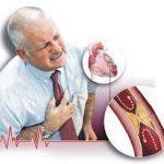 الفرق بين الازمة القلبية والذبحة الصدرية