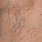 علاج وأسباب التهاب الأوعية الدموية في الساقين