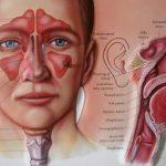 التهاب الجيوب الانفية وكيفية العلاج بالحجامة