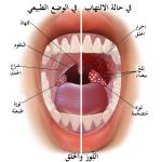 الفرق بين التهاب الحلق والتهاب اللوزتين