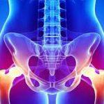 مرض التهاب الحوض لدى النساء