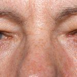 الكشف عن الحالة الصحية من خلال العين