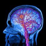 أعراض وعلاج زيادة كهرباء المخ عند الاطفال