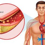 هل علاج الكوليسترول مدى الحياة ؟