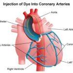 مضاعفات ما بعد قسطرة القلب