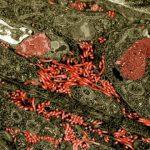فيروس الإيبولا يصيب الأعضاء التناسلية في القرود والبشر
