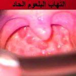 أسباب وعلاج التهاب البلعوم الحاد