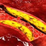 العلاقة بين ارتفاع الكوليسترول و حمض اليوريك اسيد