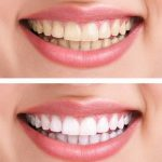 فوائد بيكربونات الصودا للأسنان