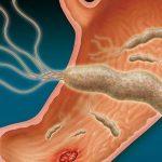 العلاقة بين جرثومة المعدة والقولون