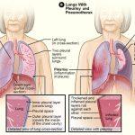 علاجات طبيعية لداء الجنبة أو التهاب الجنبة