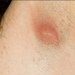 أسباب ظهور الدمامل في الابط