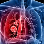 الخلايا المناعية الالتهابية تتسبب في انتشار سرطان الرئة