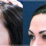 علاجات طبيعية لصلع مقدمة الرأس
