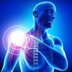 أشهر أنواع إصابات الكتف وطرق طبيعية لعلاجها