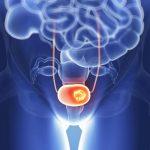 الفرق بين التهاب المثانة وسرطان المثانة