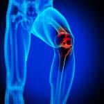 علاج التهاب المفاصل بالحجامة